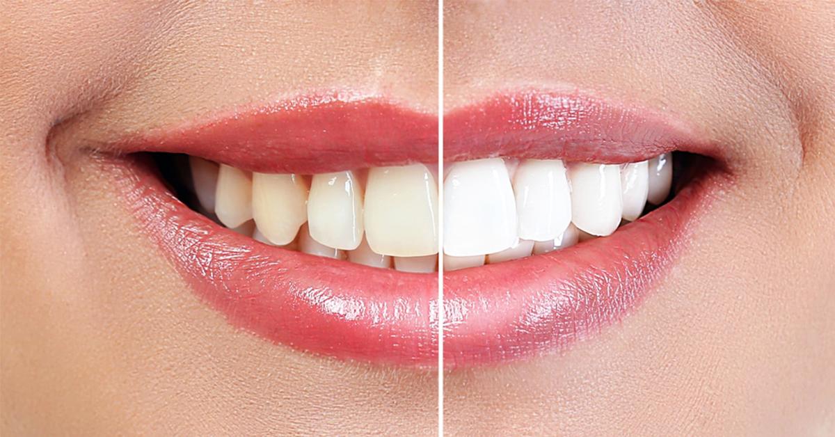Evde Diş Beyazlatma Önerileri