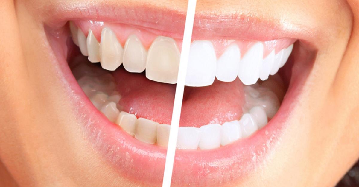 Karbonat ve Sirke ile Diş Beyazlatma