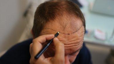 Saç Ekiminin Faydaları Ve Zararları